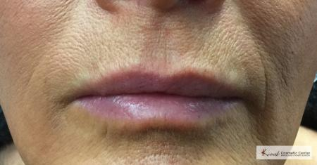 Injectables - Lips: Patient 1 - After Image