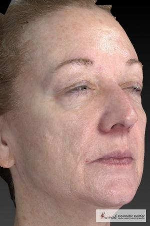 Tyte And Bryte – Face: Patient 6 - After Image 5