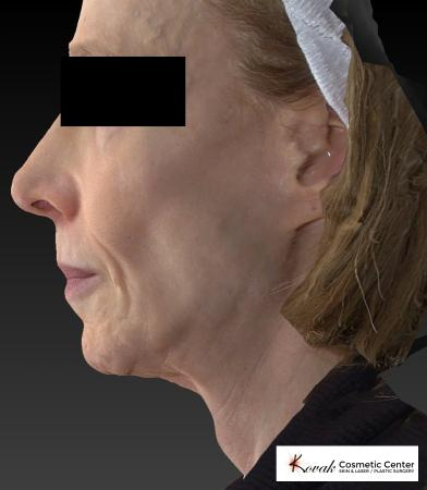 Sculptra®: Patient 1 - Before and After 5