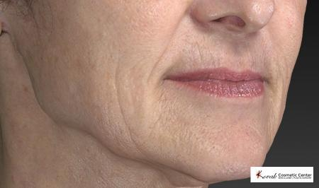 Restylane® Silk: Patient 2 - Before and After Image 5
