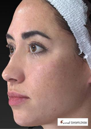 Sculptra®: Patient 3 - Before and After 3