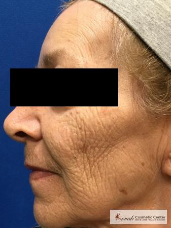 Full Face Laser Skin Resurfacing on a 70 year old woman - Before Image 2