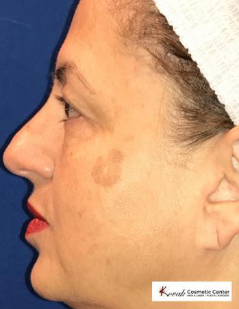 Peels: Patient 1 - Before Image