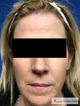 Sculptra Treatment on a 53 year old female patient - After Image