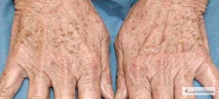 Tyte and Bryte Photorejuvenation on a 65 year old female - Before Image