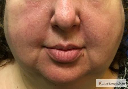 Laser Liposuction using the Vaser system of the jawline on a 52 year old female - Before Image