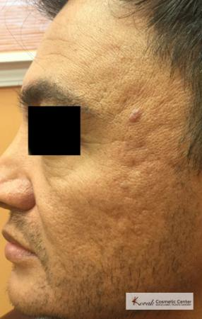 Juvéderm® XC: Patient 9 - Before Image