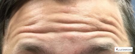Botox for the forehead on a 30 year old male - Before Image