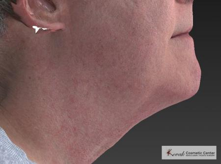 Kybella: Patient 4 - After Image