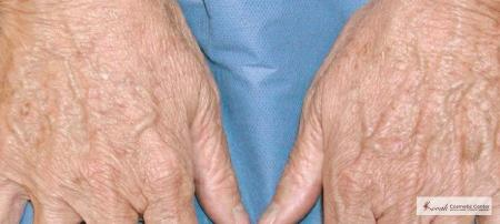Tyte and Bryte Photorejuvenation on a 65 year old female - After Image