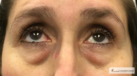 Restylane® Silk: Patient 11 - Before Image