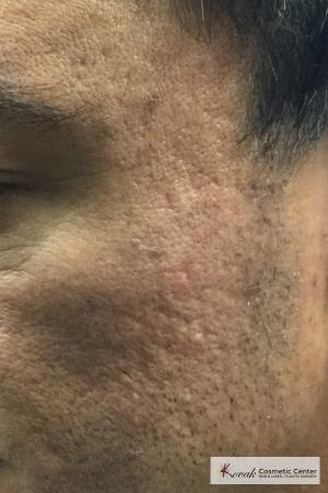 Acne Scars treated with Juvederm on 47 year old male - After Image