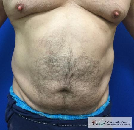 Slim Tyte: Patient 10 - Before Image
