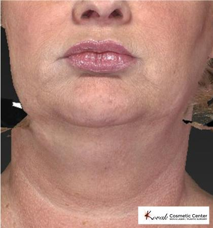 Kybella: Patient 1 - Before Image