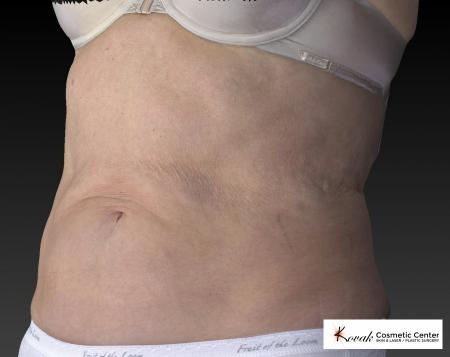 CoolSculpting®: Patient 10 - After Image