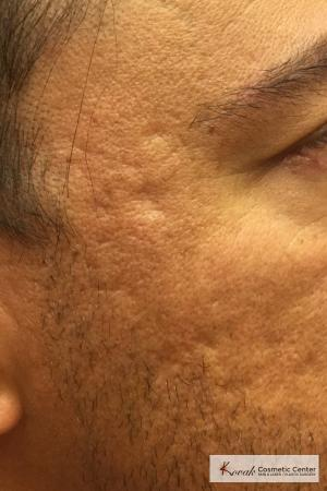 Acne Scars treated with Juvederm on 47 year old male - Before and After Image 2