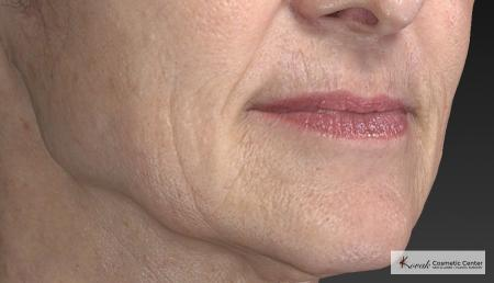 Injectables - Mouth: Patient 8 - Before and After Image 5