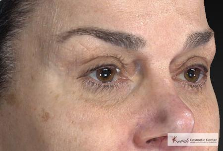 Laser Skin Resurfacing - Face: Patient 2 - Before and After Image 5