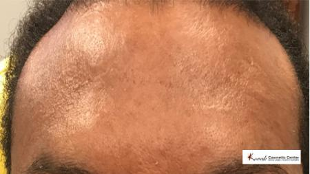 Restylane® Silk: Patient 7 - After Image