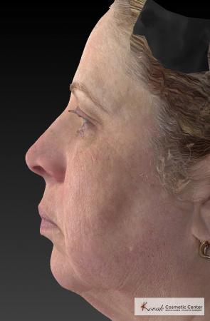 Tyte And Bryte – Face: Patient 3 - After Image 2