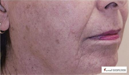 Tyte & Bryte Photorejuvenation on the face of a 57 year old female - Before Image