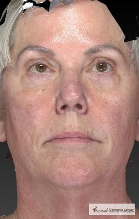 Tyte And Bryte – Face: Patient 5 - Before Image