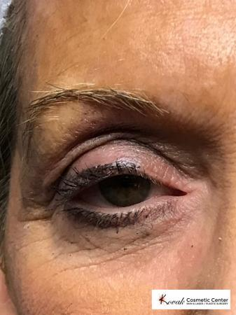 Modified Botox Brow Raise on a 64 year old Woman - Before Image