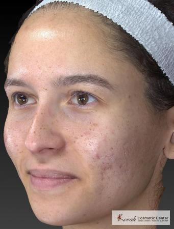 Venus Viva: Patient 3 - Before Image 3