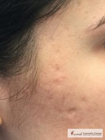 Acne Scars treated with Venus Viva on 28 year old woman - Before Image
