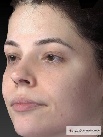 Venus Viva: Patient 4 - After Image 3