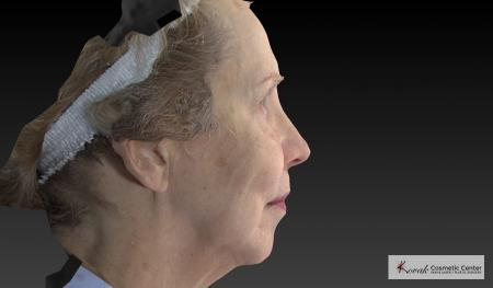 Sculptra®: Patient 4 - Before Image