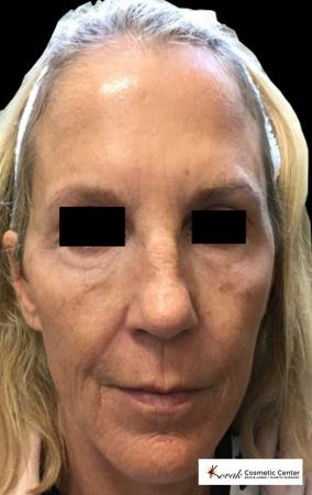 Laser Skin Resurfacing - Face: Patient 2 - Before Image