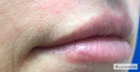 Lip Augmentation: Patient 2 - After 2