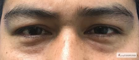 Restylane®: Patient 4 - Before Image