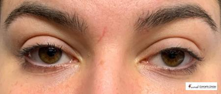 Dark Circle Treatment using Restylane Silk on a 23 year old Female - After Image