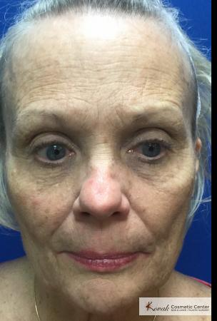 Tyte And Bryte – Face: Patient 7 - Before Image