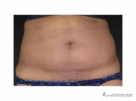 Slim Tyte: Patient 3 - Before Image