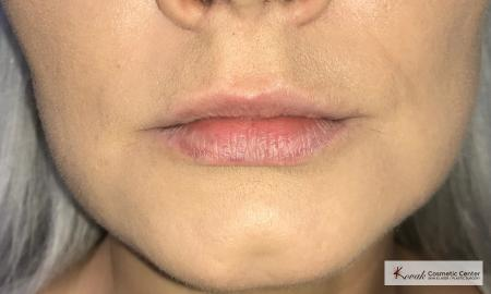 Injectables - Mouth: Patient 6 - Before Image