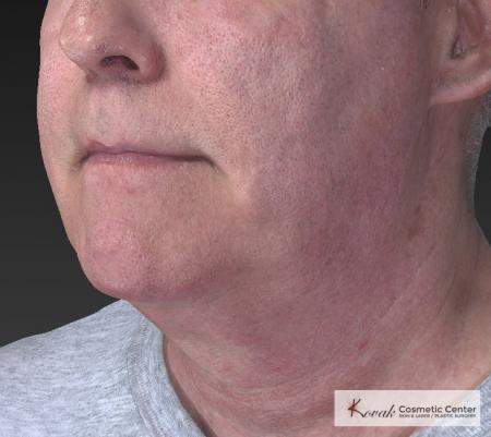 Kybella: Patient 4 - Before Image 3