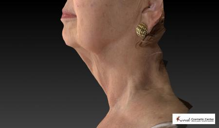 Kybella: Patient 3 - After Image 5