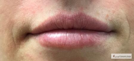 Lip Augmentation: Patient 2 - After 3