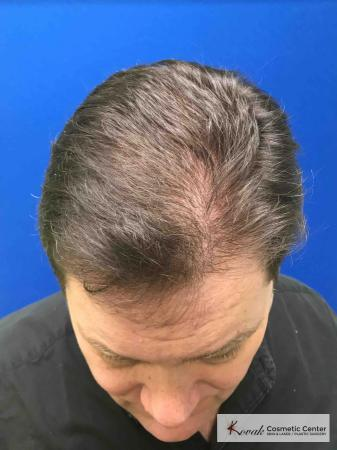 PRP For Hair Thinning: Patient 2 - After Image