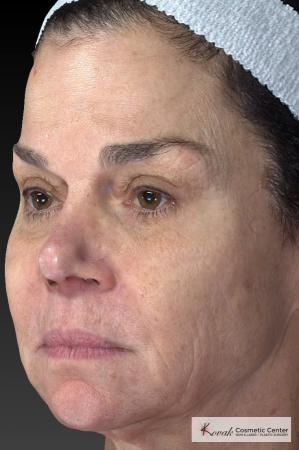Halo™: Patient 3 - Before Image 3