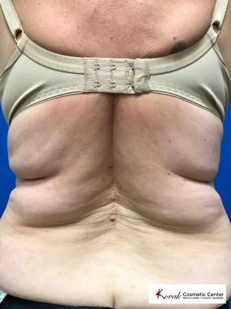 CoolSculpting®: Patient 3 - Before Image