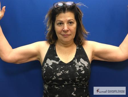 Laser Liposuction: Patient 6 - After Image