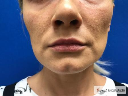 Restylane® Silk: Patient 12 - After Image
