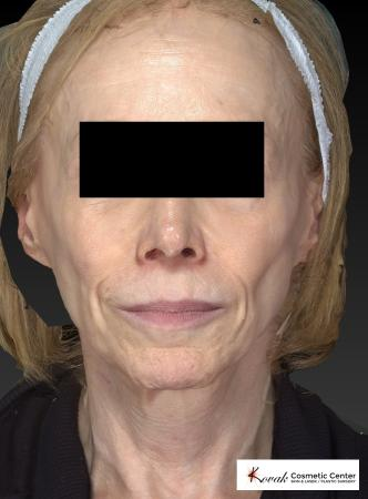 Sculptra®: Patient 1 - Before Image