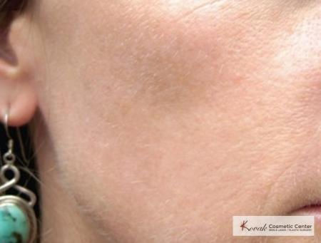 Tyte And Bryte Photorejuvenation: Patient 1 - After Image