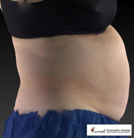 CoolSculpting®: Patient 8 - Before 4