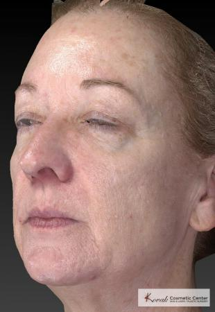 Tyte And Bryte – Face: Patient 6 - After Image 2